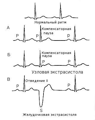 ЭКГ при аритмии сердца.
